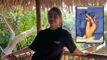 Liza Soberano to undergo fourth bone surgery
