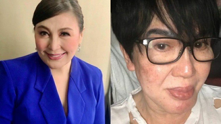 Sharon Cuneta revealed that celebrity stylist and make-up artist Fanny Serrano is now on life support. Last March 16, Cuneta said Serrano suffered a massive stroke!